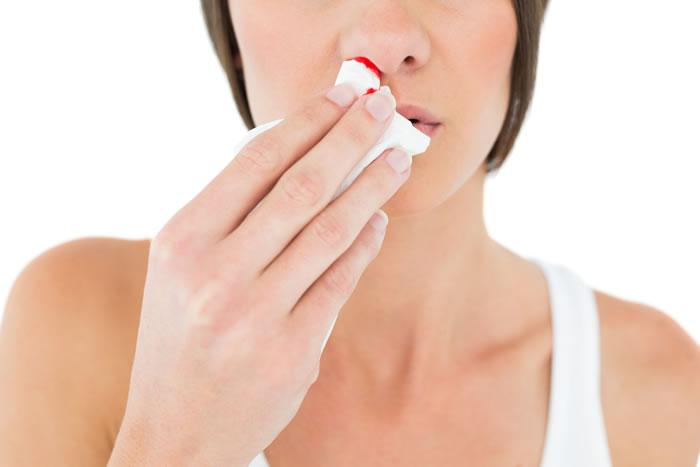 Perdita di sangue dal naso: attenzione all'aria condizionata